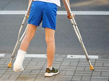 足関節骨折後の後遺症